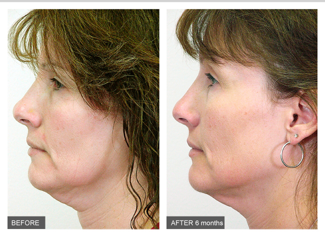 MD Cosmedical Solutions Cosmetic Surgery Clinics Sydney CBD